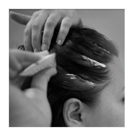 LD-scalp-scaling-spa-3.jpg