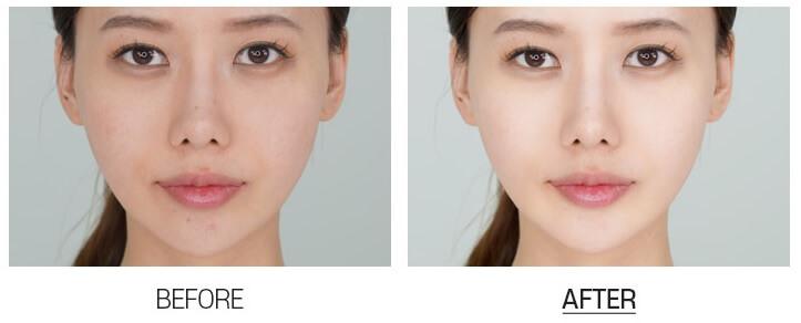 Medi peel Niacine W3 Toning Spot Cream3.jpg
