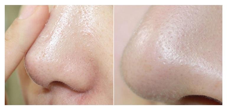 Medi peel Special Care Pore9 Tightening Serum1.jpg
